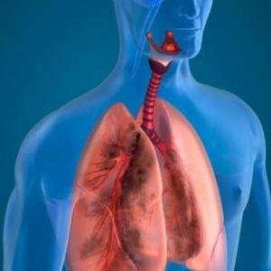 什么是胸膜炎 怎么治疗呢